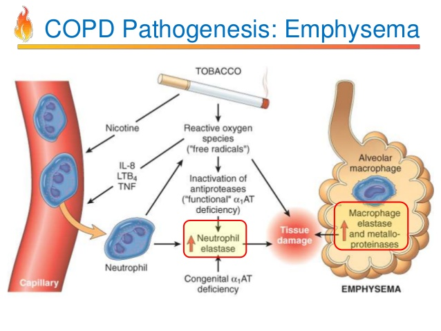 COPD Pathogenesis